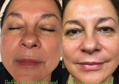 Pre and Post Dermaplaning and Lactic Peel