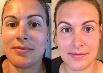 Brittany Pre and Post Dermaplaning and Lactic peel