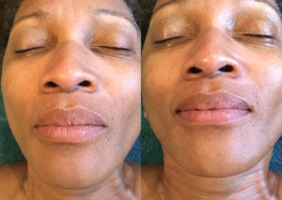 Pre and Post Lactic Peel